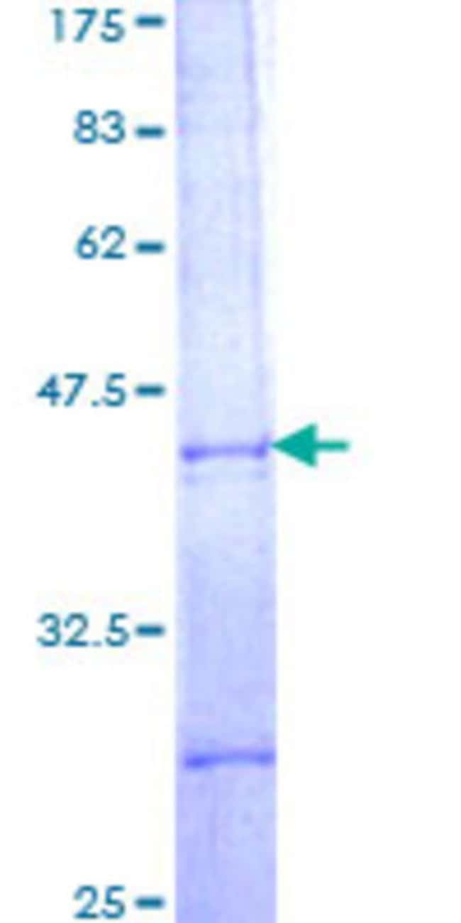 Abnova™Human PBX2 Partial ORF (NP_002577, 153 a.a. - 245 a.a.) Recombinant Protein with GST-tag at N-terminal 10μg Abnova™Human PBX2 Partial ORF (NP_002577, 153 a.a. - 245 a.a.) Recombinant Protein with GST-tag at N-terminal