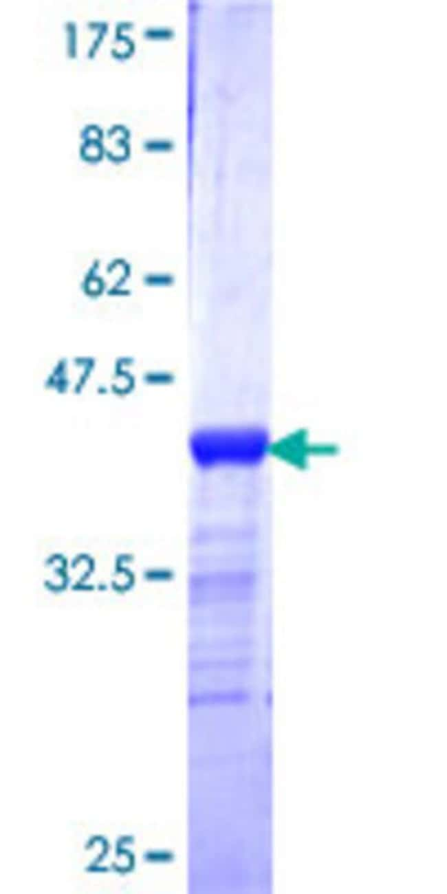Abnova™Human PCMT1 Partial ORF (NP_005380, 117 a.a. - 225 a.a.) Recombinant Protein with GST-tag at N-terminal 10μg Abnova™Human PCMT1 Partial ORF (NP_005380, 117 a.a. - 225 a.a.) Recombinant Protein with GST-tag at N-terminal