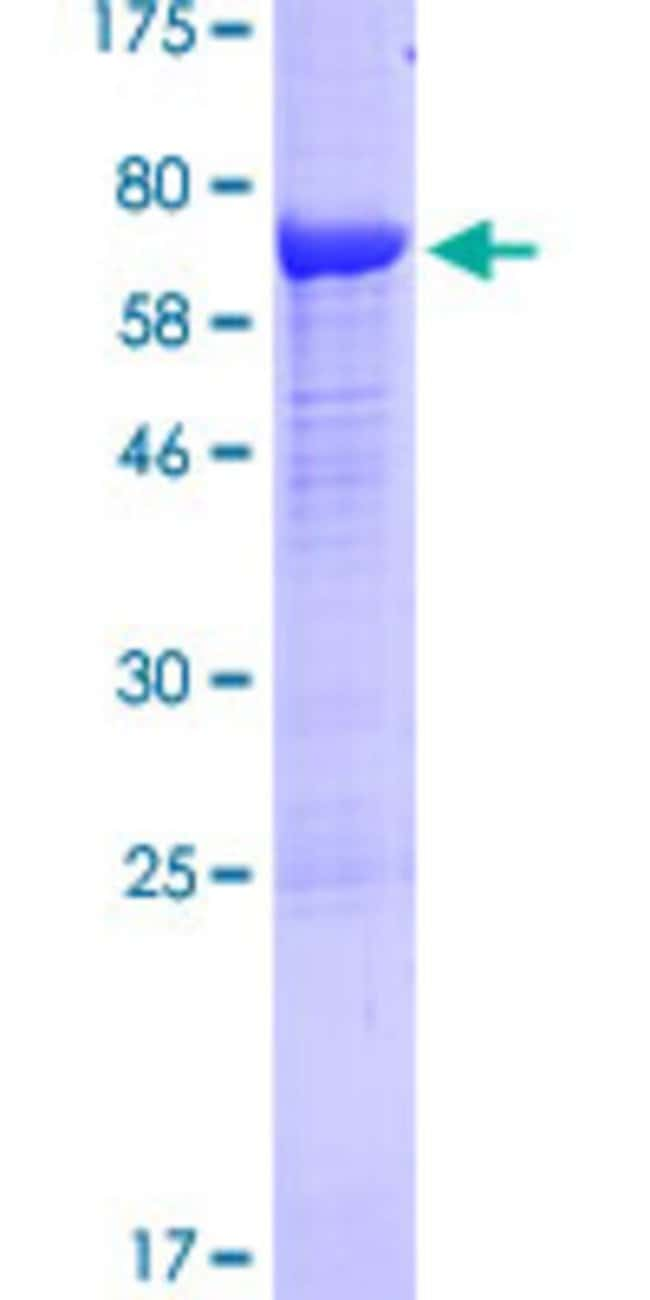 Abnova™Human PCOLCE Full-length ORF (AAH00574.1, 1 a.a. - 449 a.a.) Recombinant Protein with GST-tag at N-terminal 10μg Abnova™Human PCOLCE Full-length ORF (AAH00574.1, 1 a.a. - 449 a.a.) Recombinant Protein with GST-tag at N-terminal