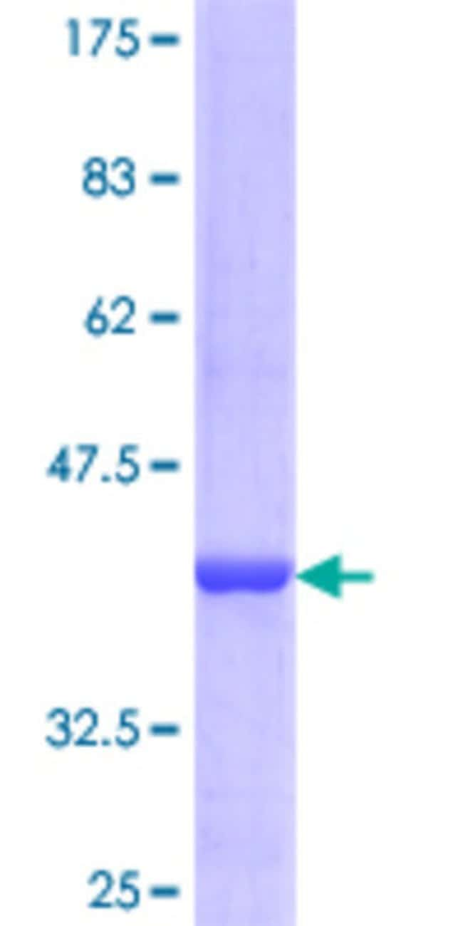 Abnova™Human PDE9A Partial ORF (NP_001001567.1, 434 a.a. - 533 a.a.) Recombinant Protein with GST-tag at N-terminal 25μg Abnova™Human PDE9A Partial ORF (NP_001001567.1, 434 a.a. - 533 a.a.) Recombinant Protein with GST-tag at N-terminal