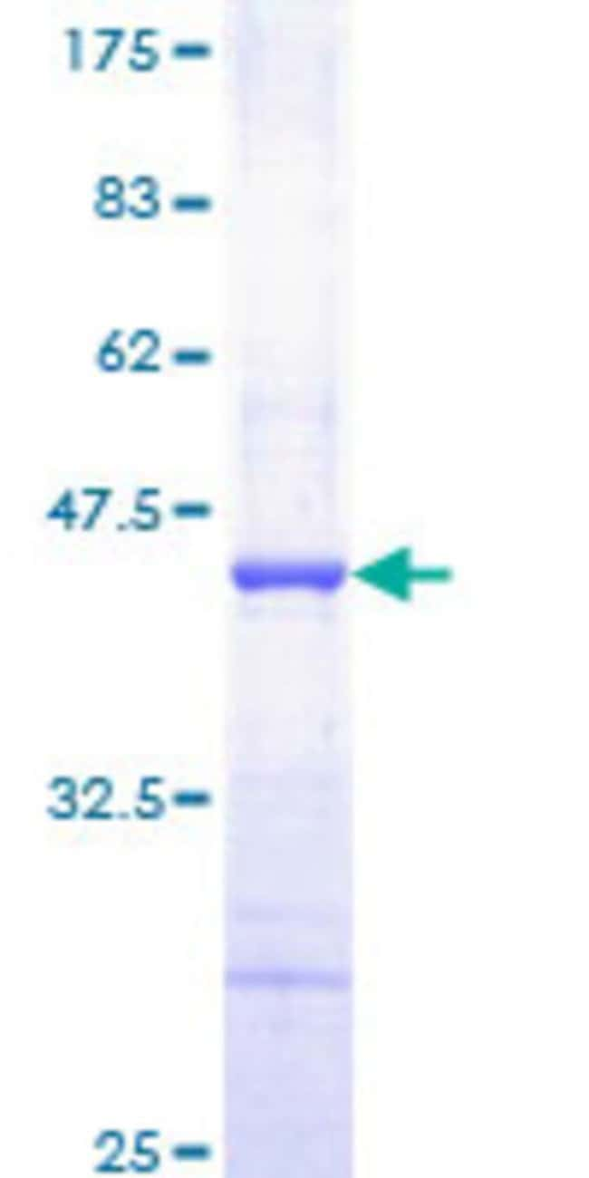Abnova™Human PDGFB Partial ORF (NP_002599, 82 a.a. - 190 a.a.) Recombinant Protein with GST-tag at N-terminal 25μg Abnova™Human PDGFB Partial ORF (NP_002599, 82 a.a. - 190 a.a.) Recombinant Protein with GST-tag at N-terminal
