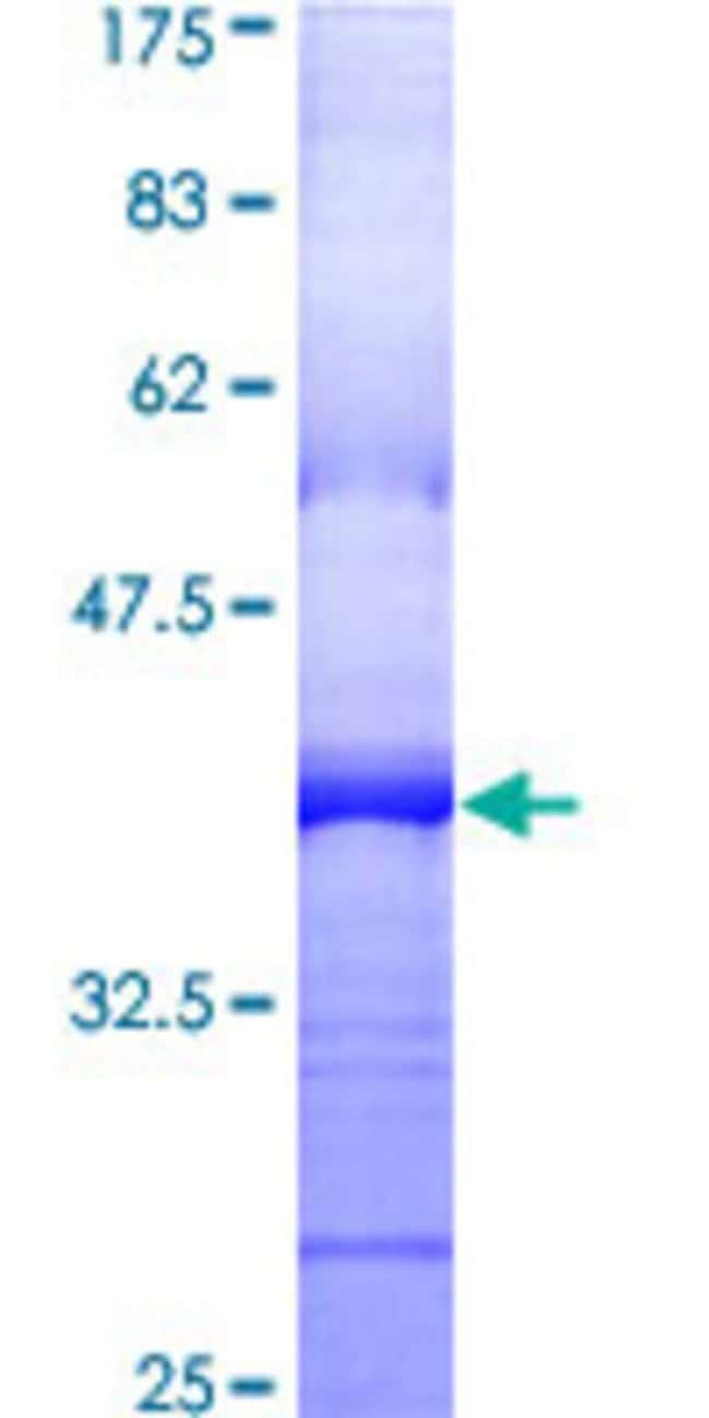 Abnova™Human PDGFRB Partial ORF (AAH32224, 33 a.a. - 133 a.a.) Recombinant Protein with GST-tag at N-terminal 25μg Abnova™Human PDGFRB Partial ORF (AAH32224, 33 a.a. - 133 a.a.) Recombinant Protein with GST-tag at N-terminal