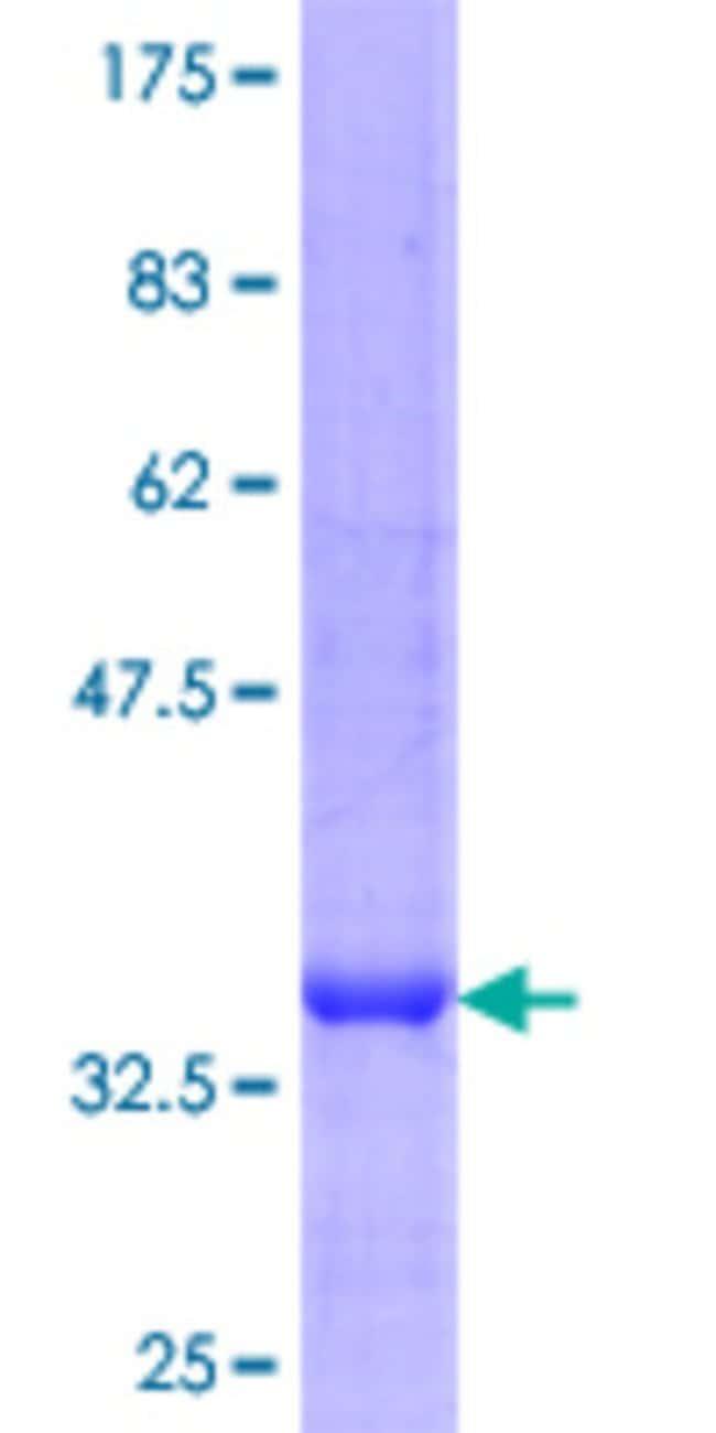 Abnova™Human PDHA2 Partial ORF (NP_005381.1, 7 a.a. - 115 a.a.) Recombinant Protein with GST-tag at N-terminal 10μg Abnova™Human PDHA2 Partial ORF (NP_005381.1, 7 a.a. - 115 a.a.) Recombinant Protein with GST-tag at N-terminal