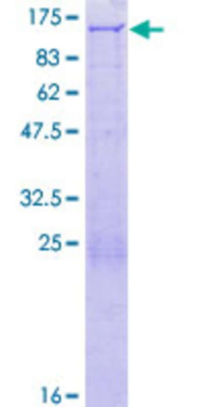 Abnova™Human PEX6 Full-length ORF (AAH48331.1, 1 a.a. - 980 a.a.) Recombinant Protein with GST-tag at N-terminal 10μg Abnova™Human PEX6 Full-length ORF (AAH48331.1, 1 a.a. - 980 a.a.) Recombinant Protein with GST-tag at N-terminal