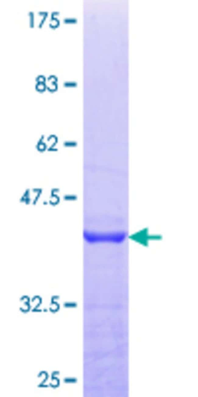 Abnova™Human PEX14 Partial ORF (NP_004556.1, 293 a.a. - 375 a.a.) Recombinant Protein with GST-tag at N-terminal 10μg Abnova™Human PEX14 Partial ORF (NP_004556.1, 293 a.a. - 375 a.a.) Recombinant Protein with GST-tag at N-terminal
