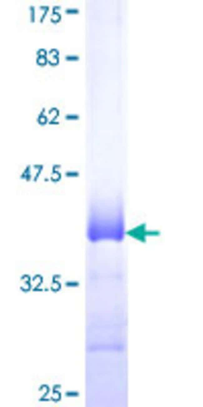 Abnova™Human PF4 Partial ORF (NP_002610, 31 a.a. - 101 a.a.) Recombinant Protein with GST-tag at N-terminal 10μg Abnova™Human PF4 Partial ORF (NP_002610, 31 a.a. - 101 a.a.) Recombinant Protein with GST-tag at N-terminal