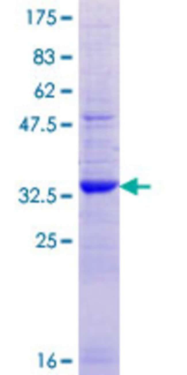 AbnovaHuman ATP8B1 Partial ORF (NP_005594.1, 471 a.a. - 551 a.a.) Recombinant