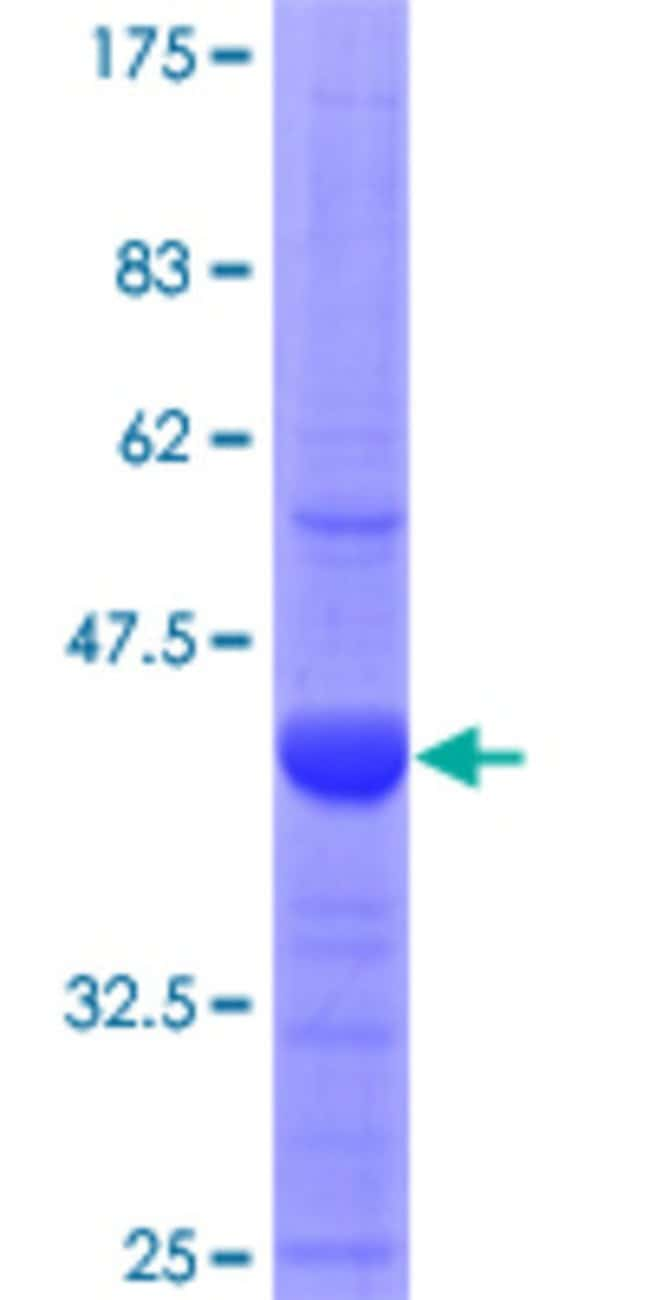 Abnova™ Human PFKFB3 Partial ORF (NP_004557, 412 a.a. - 520 a.a.) Recombinant Protein with GST-tag at N-terminal 10μg Abnova™ Human PFKFB3 Partial ORF (NP_004557, 412 a.a. - 520 a.a.) Recombinant Protein with GST-tag at N-terminal