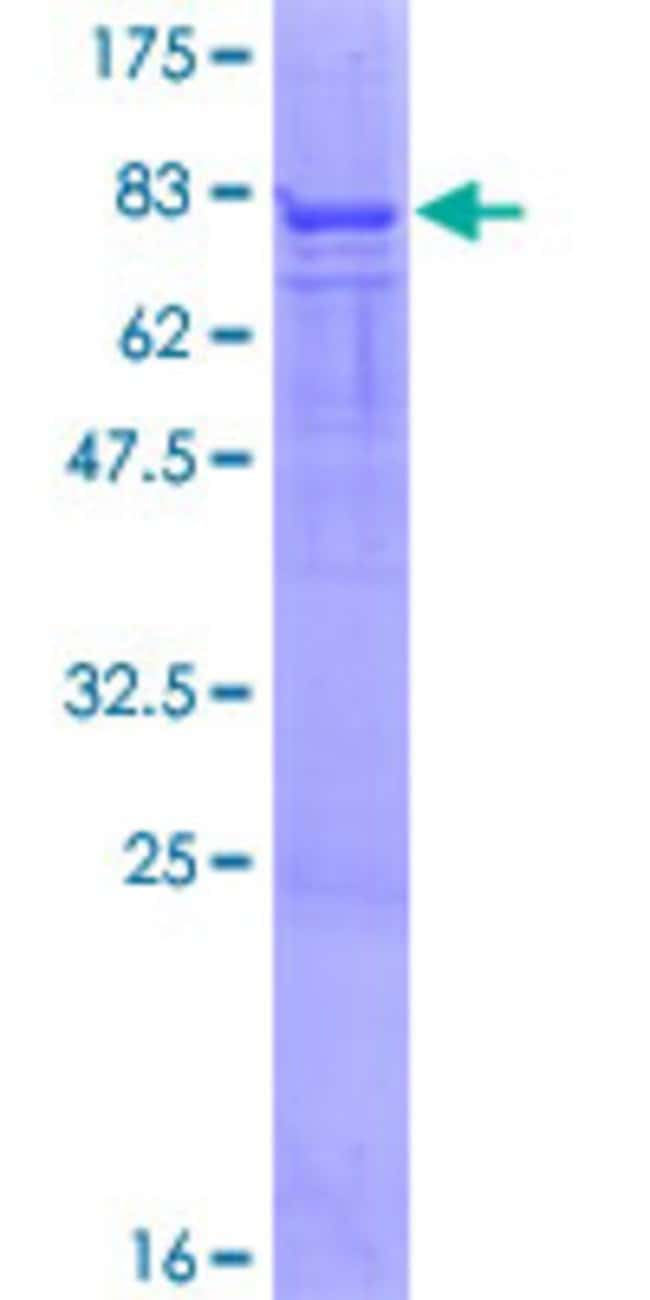 Abnova™Human PFKFB4 Full-length ORF (NP_004558.1, 1 a.a. - 469 a.a.) Recombinant Protein with GST-tag at N-terminal 10μg Abnova™Human PFKFB4 Full-length ORF (NP_004558.1, 1 a.a. - 469 a.a.) Recombinant Protein with GST-tag at N-terminal