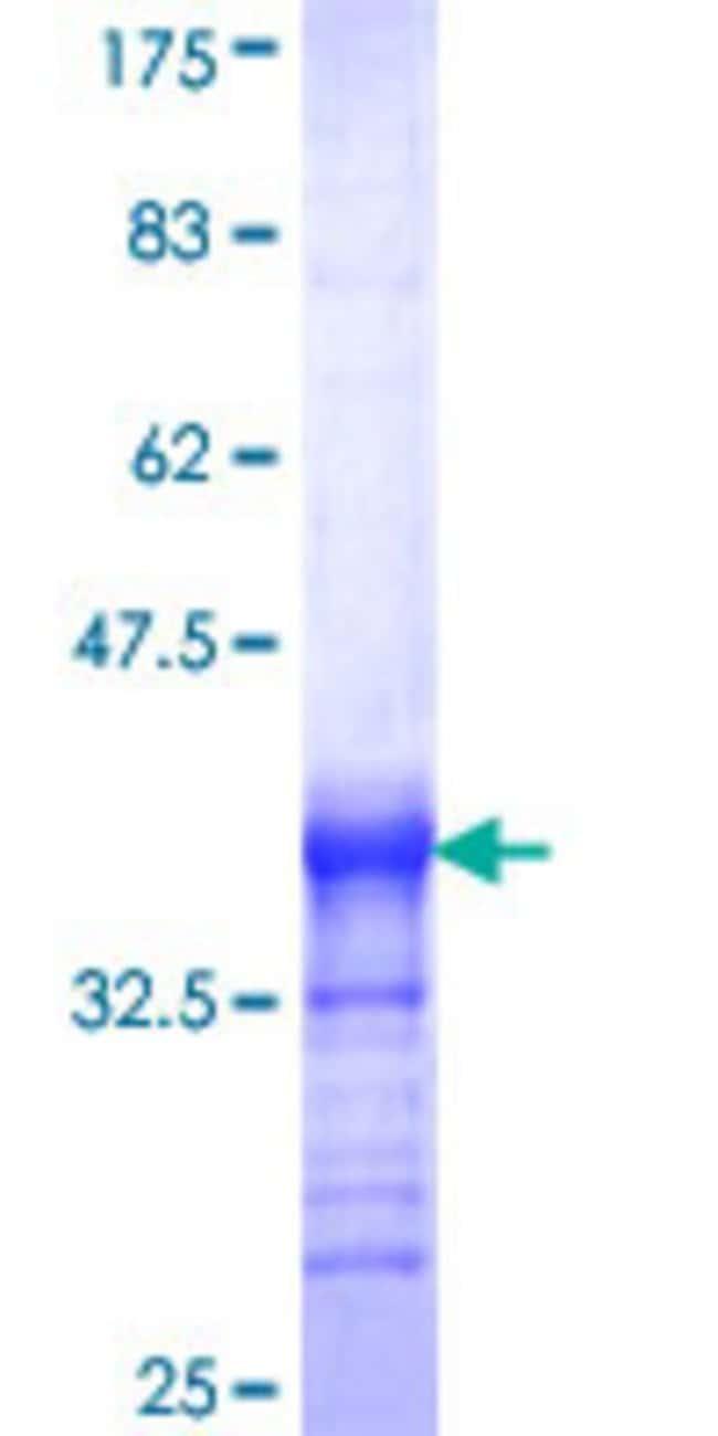 Abnova Human PHF2 Partial ORF (NP_005383, 2 a.a. - 100 a.a.) Recombinant