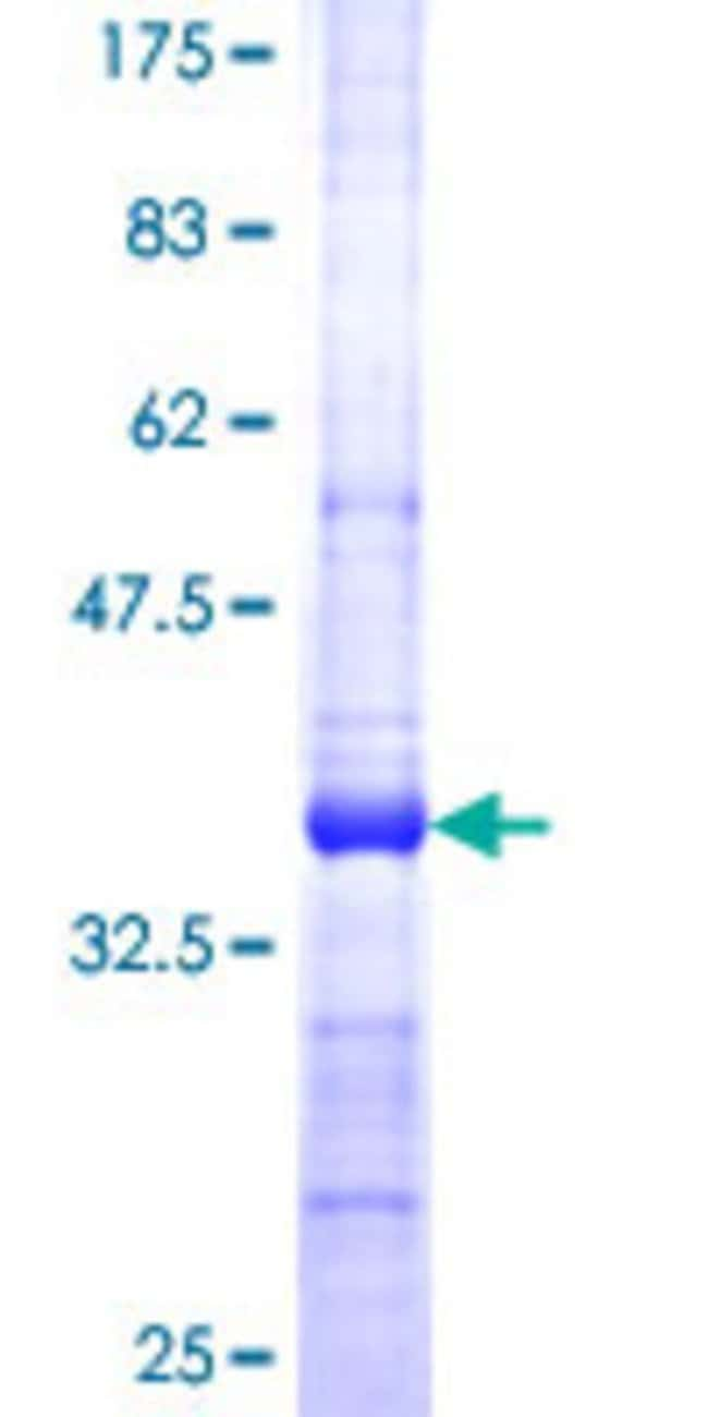 Abnova™Human SERPINB9 Partial ORF (NP_004146, 279 a.a. - 375 a.a.) Recombinant Protein with GST-tag at N-terminal 25μg Abnova™Human SERPINB9 Partial ORF (NP_004146, 279 a.a. - 375 a.a.) Recombinant Protein with GST-tag at N-terminal