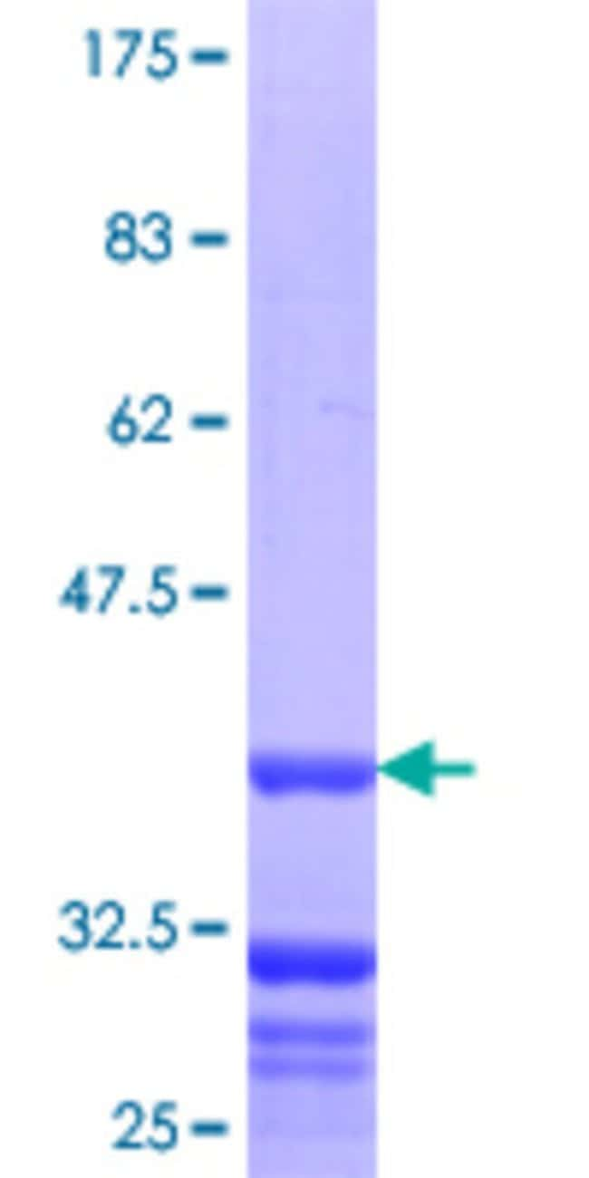 Abnova™Human SERPINB10 Partial ORF (NP_005015.1, 46 a.a. - 145 a.a.) Recombinant Protein with GST-tag at N-terminal 10μg Abnova™Human SERPINB10 Partial ORF (NP_005015.1, 46 a.a. - 145 a.a.) Recombinant Protein with GST-tag at N-terminal