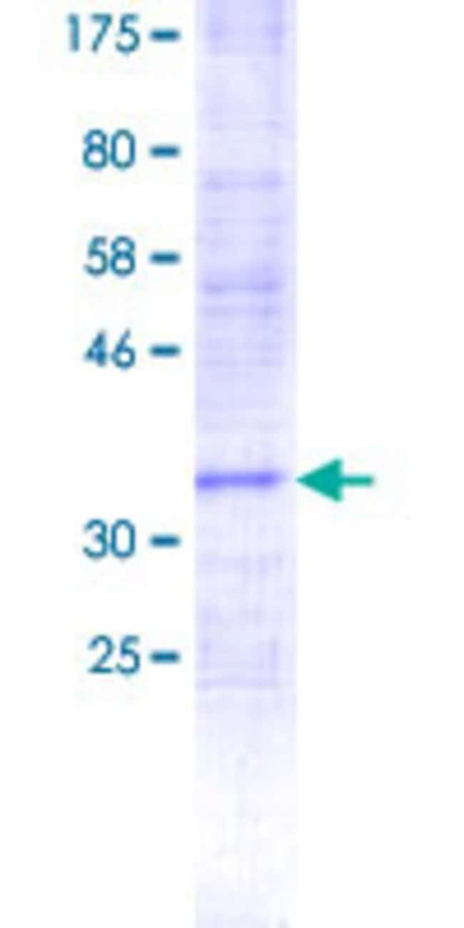 Abnova™Human PIGF Partial ORF (NP_775097.1, 1 a.a. - 100 a.a.) Recombinant Protein with GST-tag at N-terminal 25μg Abnova™Human PIGF Partial ORF (NP_775097.1, 1 a.a. - 100 a.a.) Recombinant Protein with GST-tag at N-terminal