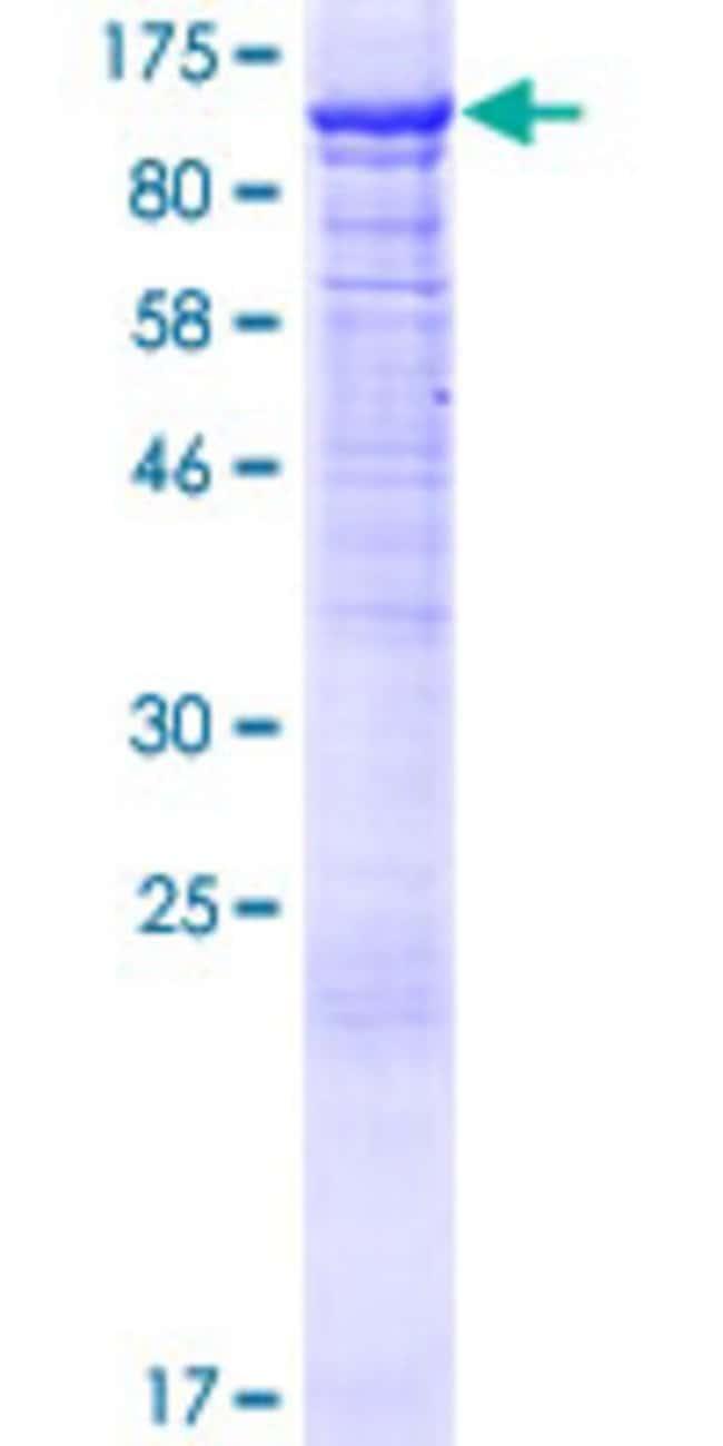 Abnova Human PI4KB Full-length ORF (NP_002642.1, 1 a.a. - 828 a.a.) Recombinant