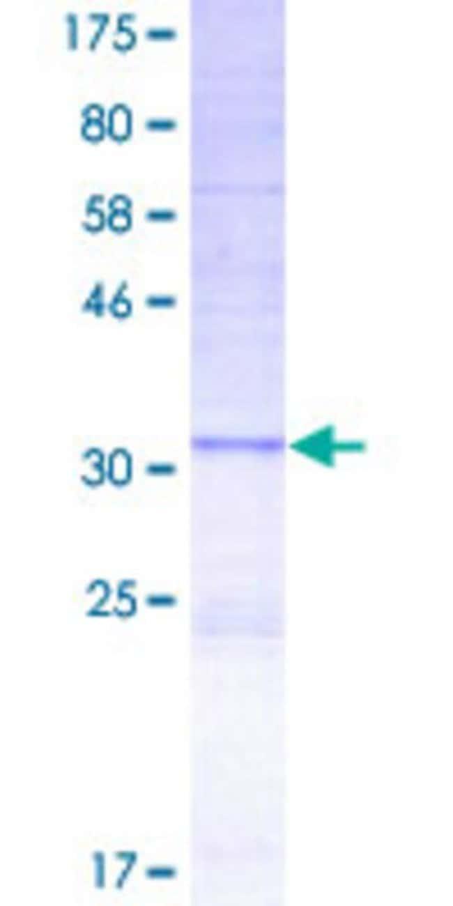 Abnova™Human PKLR Partial ORF (AAH25737, 485 a.a. - 574 a.a.) Recombinant Protein with GST-tag at N-terminal 25μg Abnova™Human PKLR Partial ORF (AAH25737, 485 a.a. - 574 a.a.) Recombinant Protein with GST-tag at N-terminal