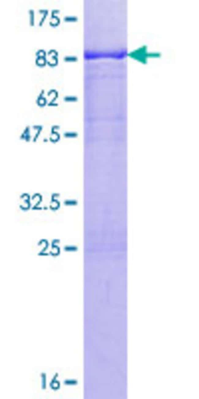 Abnova™Human PKNOX1 Full-length ORF (NP_004562.2, 1 a.a. - 436 a.a.) Recombinant Protein with GST-tag at N-terminal 10μg Abnova™Human PKNOX1 Full-length ORF (NP_004562.2, 1 a.a. - 436 a.a.) Recombinant Protein with GST-tag at N-terminal