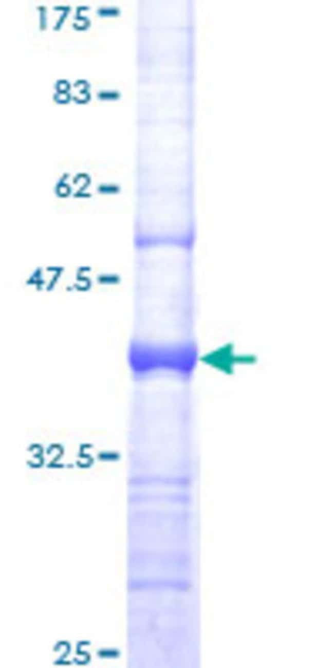 Abnova™ Human PLAUR Partial ORF (NP_002650, 25 a.a. - 134 a.a.) Recombinant Protein with GST-tag at N-terminal 10μg Abnova™ Human PLAUR Partial ORF (NP_002650, 25 a.a. - 134 a.a.) Recombinant Protein with GST-tag at N-terminal