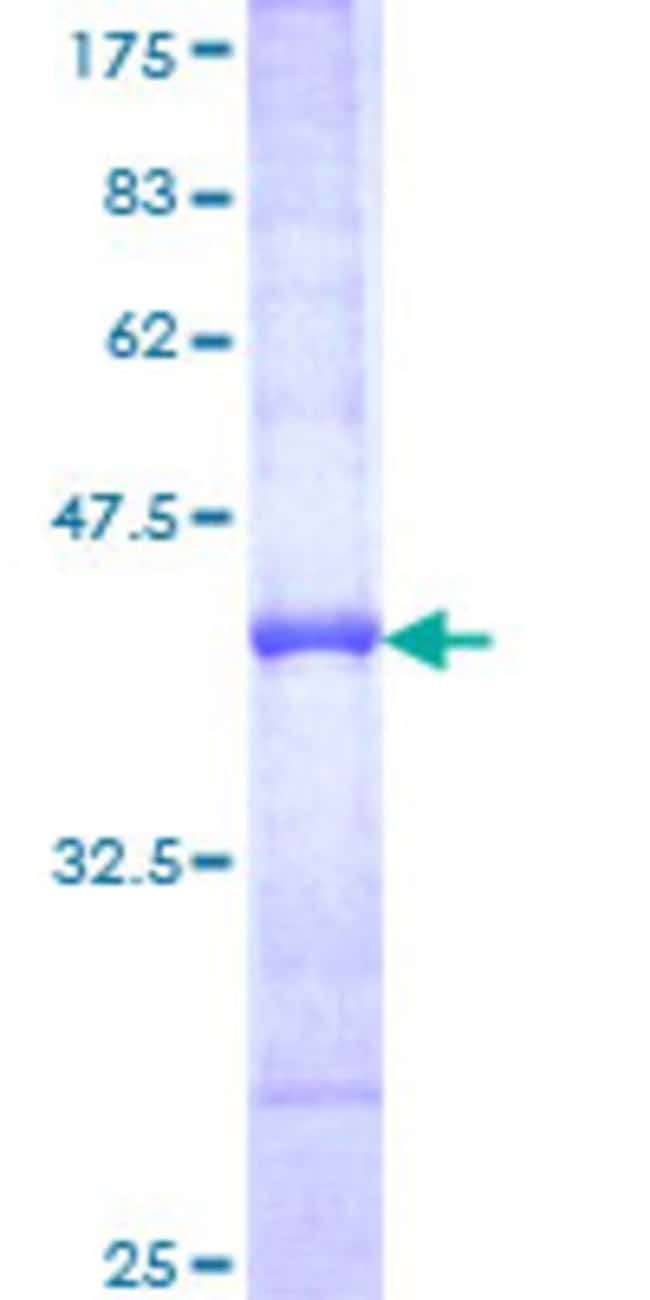 Abnova™Human PLEC1 Partial ORF (NP_000436, 4384 a.a. - 4493 a.a.) Recombinant Protein with GST-tag at N-terminal 25μg Abnova™Human PLEC1 Partial ORF (NP_000436, 4384 a.a. - 4493 a.a.) Recombinant Protein with GST-tag at N-terminal