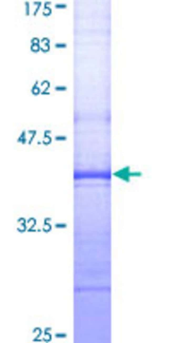 Abnova™Human PLG Partial ORF (AAH60513, 21 a.a. - 120 a.a.) Recombinant Protein with GST-tag at N-terminal 10μg Abnova™Human PLG Partial ORF (AAH60513, 21 a.a. - 120 a.a.) Recombinant Protein with GST-tag at N-terminal