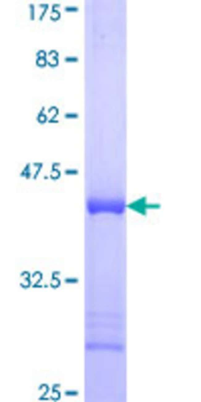 Abnova™Human PLEK Partial ORF (AAH18549, 121 a.a. - 230 a.a.) Recombinant Protein with GST-tag at N-terminal 25μg Abnova™Human PLEK Partial ORF (AAH18549, 121 a.a. - 230 a.a.) Recombinant Protein with GST-tag at N-terminal