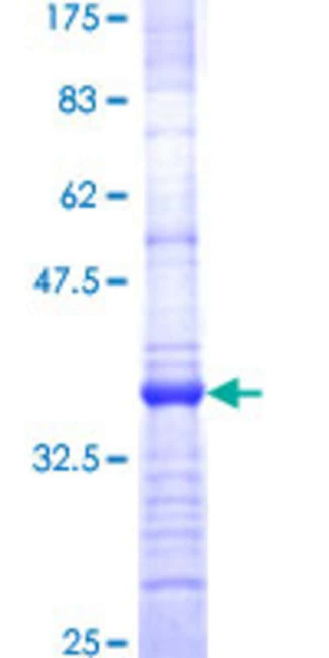 Abnova™Human PLGLB1 Partial ORF (NP_002656, 21 a.a. - 96 a.a.) Recombinant Protein with GST-tag at N-terminal 10μg Abnova™Human PLGLB1 Partial ORF (NP_002656, 21 a.a. - 96 a.a.) Recombinant Protein with GST-tag at N-terminal