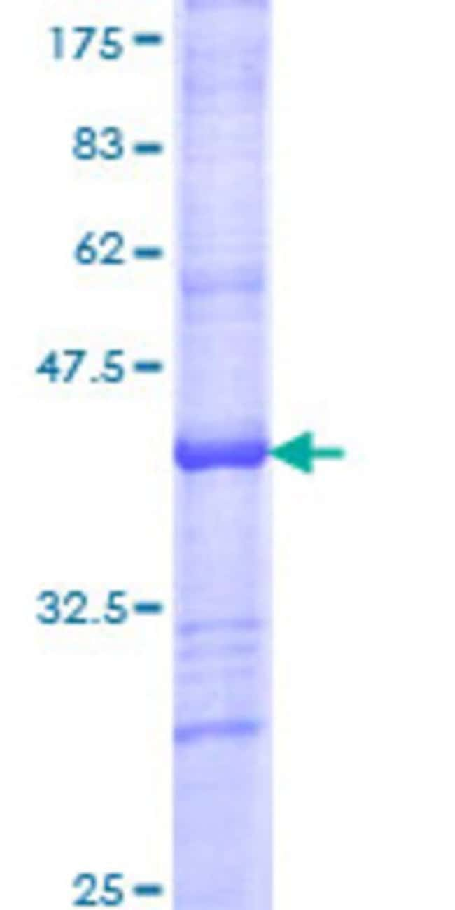 Abnova™Human PLK1 Partial ORF (AAH02369, 501 a.a. - 603 a.a.) Recombinant Protein with GST-tag at N-terminal 10μg Abnova™Human PLK1 Partial ORF (AAH02369, 501 a.a. - 603 a.a.) Recombinant Protein with GST-tag at N-terminal