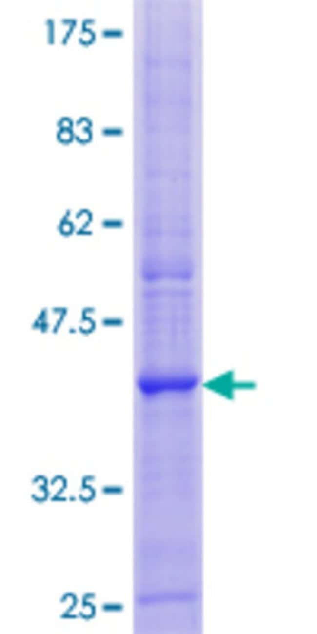 Abnova™Human PLP2 Full-length ORF (NP_002659.1, 1 a.a. - 152 a.a.) Recombinant Protein with GST-tag at N-terminal 25μg Abnova™Human PLP2 Full-length ORF (NP_002659.1, 1 a.a. - 152 a.a.) Recombinant Protein with GST-tag at N-terminal