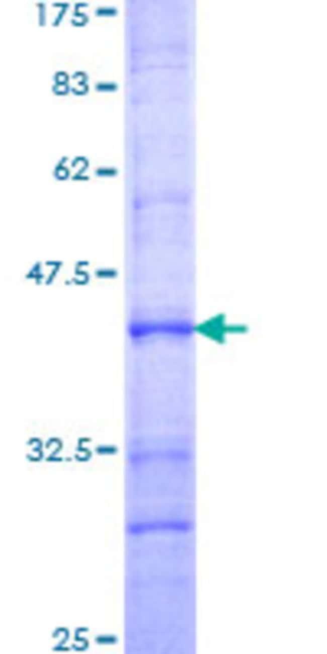 Abnova Human PRRX1 Partial ORF (NP_073207, 1 a.a. - 90 a.a.) Recombinant