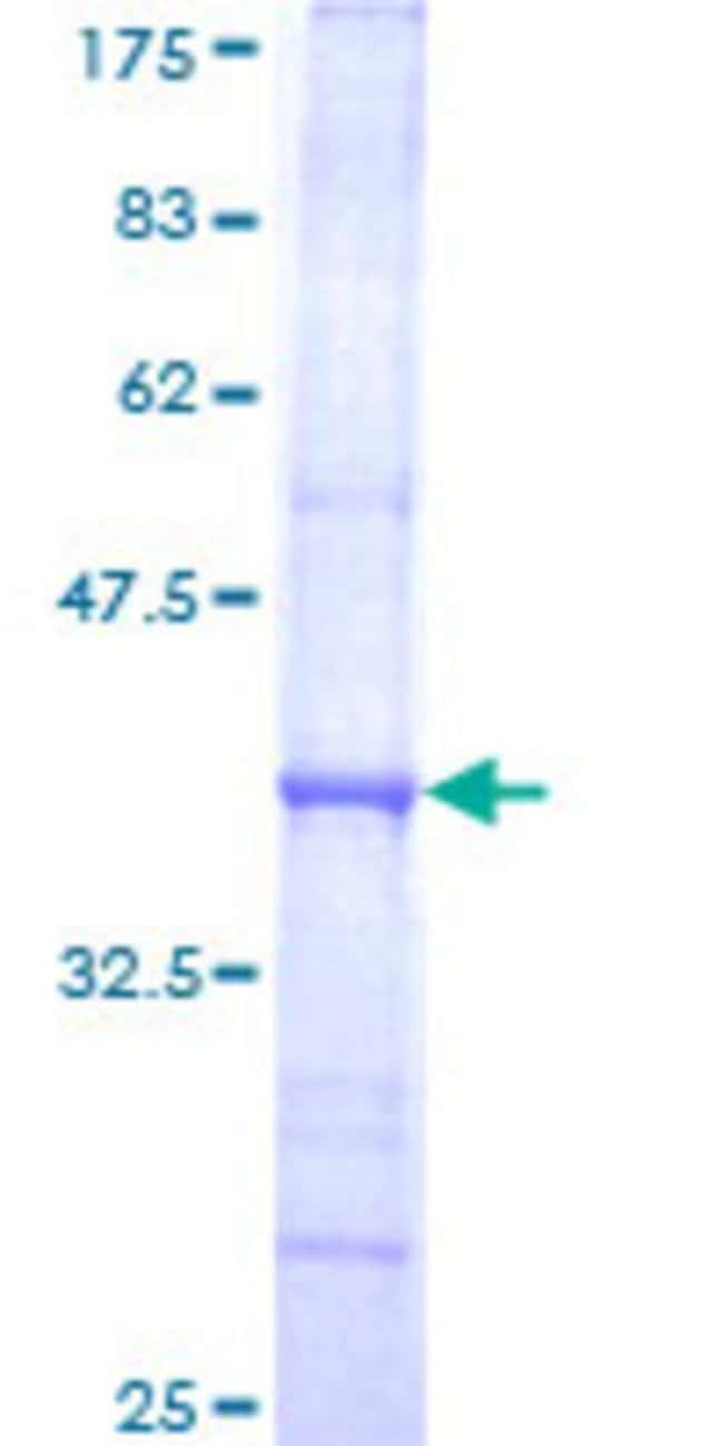 Abnova™Human POLA Partial ORF (NP_058633, 1363 a.a. - 1462 a.a.) Recombinant Protein with GST-tag at N-terminal 25μg Abnova™Human POLA Partial ORF (NP_058633, 1363 a.a. - 1462 a.a.) Recombinant Protein with GST-tag at N-terminal