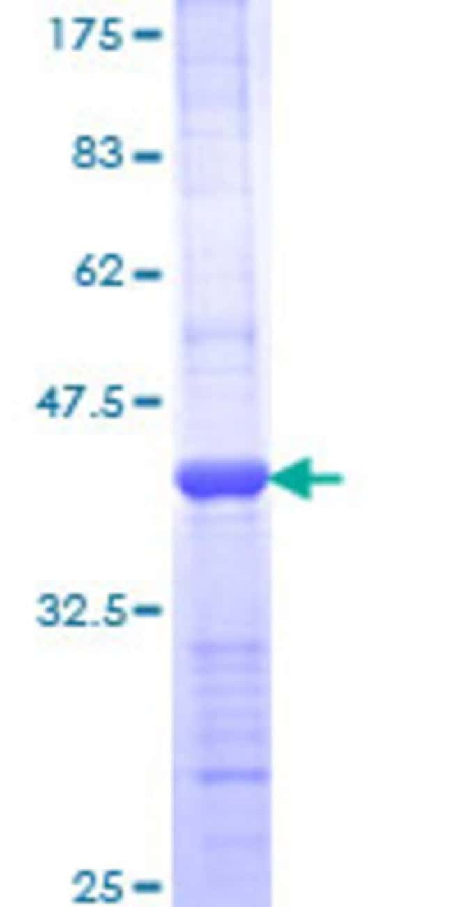 Abnova™Human POLB Partial ORF (AAI06910.1, 224 a.a. - 333 a.a.) Recombinant Protein with GST-tag at N-terminal 25μg Abnova™Human POLB Partial ORF (AAI06910.1, 224 a.a. - 333 a.a.) Recombinant Protein with GST-tag at N-terminal