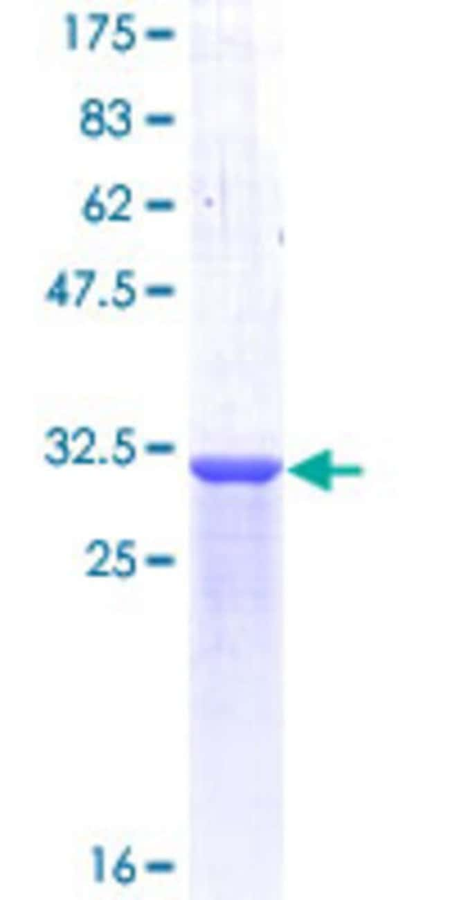 Abnova™Human POMC Partial ORF (NP_000930, 205 a.a. - 267 a.a.) Recombinant Protein with GST-tag at N-terminal 10μg Abnova™Human POMC Partial ORF (NP_000930, 205 a.a. - 267 a.a.) Recombinant Protein with GST-tag at N-terminal