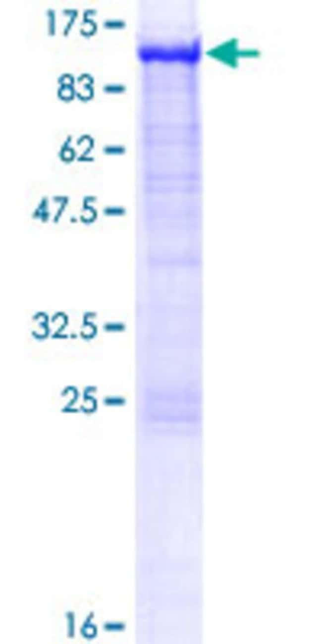Abnova™Human POR Full-length ORF (AAH34277.1, 1 a.a. - 680 a.a.) Recombinant Protein with GST-tag at N-terminal 10μg Abnova™Human POR Full-length ORF (AAH34277.1, 1 a.a. - 680 a.a.) Recombinant Protein with GST-tag at N-terminal