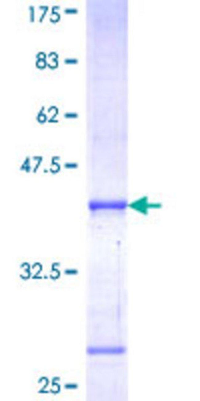 Abnova™Human POU1F1 Partial ORF (NP_000297, 182 a.a. - 291 a.a.) Recombinant Protein with GST-tag at N-terminal 10μg Abnova™Human POU1F1 Partial ORF (NP_000297, 182 a.a. - 291 a.a.) Recombinant Protein with GST-tag at N-terminal