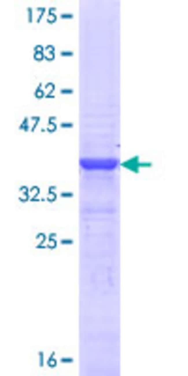 Abnova™Human POU4F1 Partial ORF (NP_006228.2, 331 a.a. - 420 a.a.) Recombinant Protein with GST-tag at N-terminal 25μg Abnova™Human POU4F1 Partial ORF (NP_006228.2, 331 a.a. - 420 a.a.) Recombinant Protein with GST-tag at N-terminal