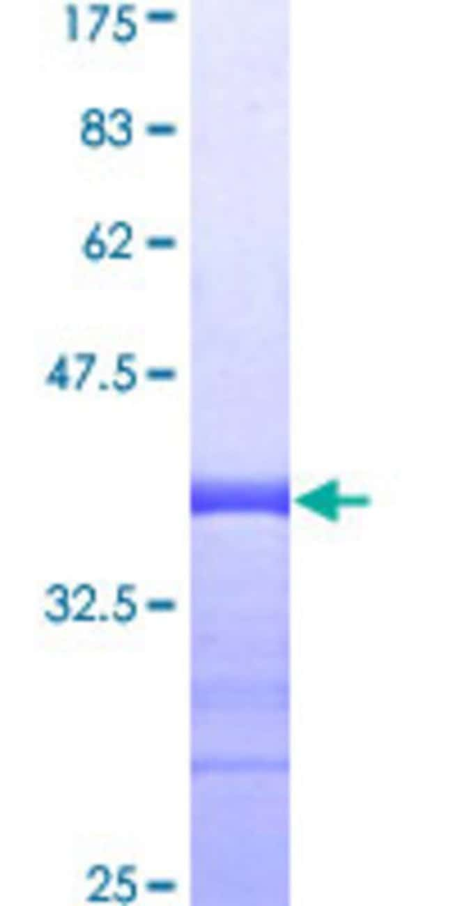 Abnova™Human PPBP Partial ORF (AAH28217, 37 a.a. - 128 a.a.) Recombinant Protein with GST-tag at N-terminal 25μg Abnova™Human PPBP Partial ORF (AAH28217, 37 a.a. - 128 a.a.) Recombinant Protein with GST-tag at N-terminal