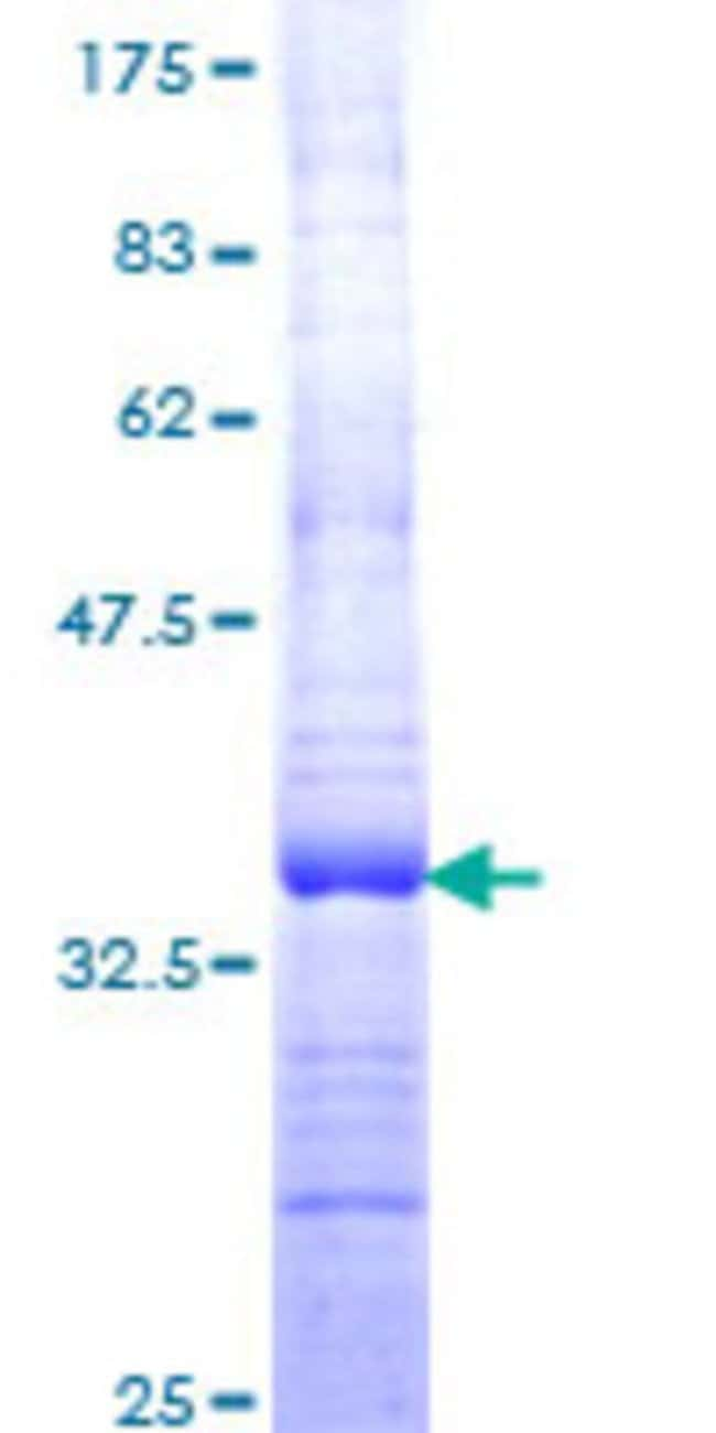 Abnova™Human PPM1G Partial ORF (NP_817092, 462 a.a. - 544 a.a.) Recombinant Protein with GST-tag at N-terminal 10μg Abnova™Human PPM1G Partial ORF (NP_817092, 462 a.a. - 544 a.a.) Recombinant Protein with GST-tag at N-terminal