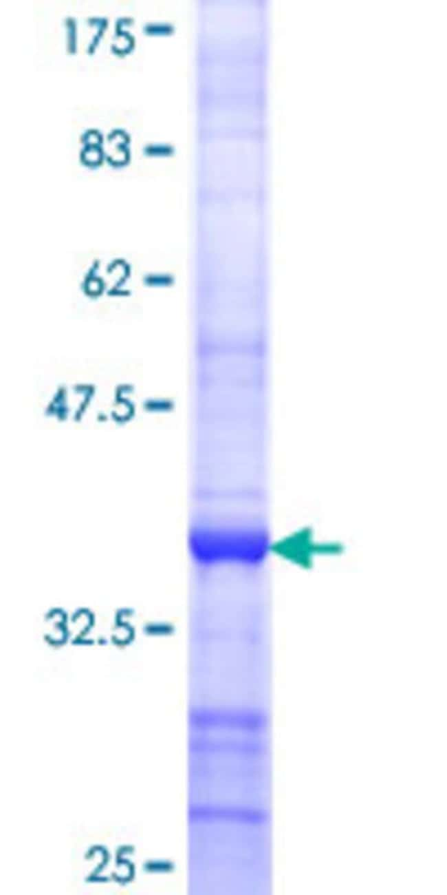 Abnova™Human PPP1CB Partial ORF (NP_002700, 231 a.a. - 327 a.a.) Recombinant Protein with GST-tag at N-terminal 25μg Abnova™Human PPP1CB Partial ORF (NP_002700, 231 a.a. - 327 a.a.) Recombinant Protein with GST-tag at N-terminal
