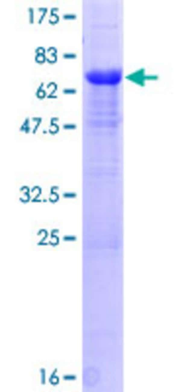 Abnova™ Human PPP1R7 Full-length ORF (NP_002703.1, 1 a.a. - 360 a.a.) Recombinant Protein with GST-tag at N-terminal 25μg Abnova™ Human PPP1R7 Full-length ORF (NP_002703.1, 1 a.a. - 360 a.a.) Recombinant Protein with GST-tag at N-terminal