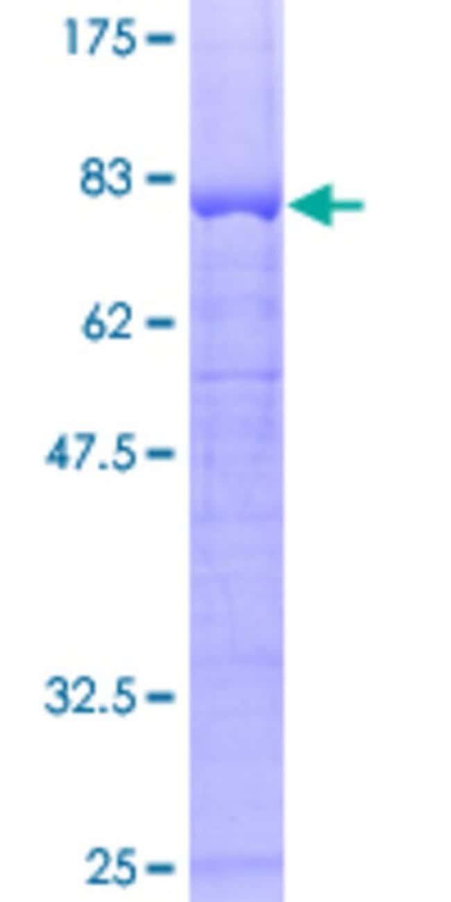 Abnova™Human PPP2R2B Full-length ORF (AAH31790, 1 a.a. - 443 a.a.) Recombinant Protein with GST-tag at N-terminal 25μg Abnova™Human PPP2R2B Full-length ORF (AAH31790, 1 a.a. - 443 a.a.) Recombinant Protein with GST-tag at N-terminal