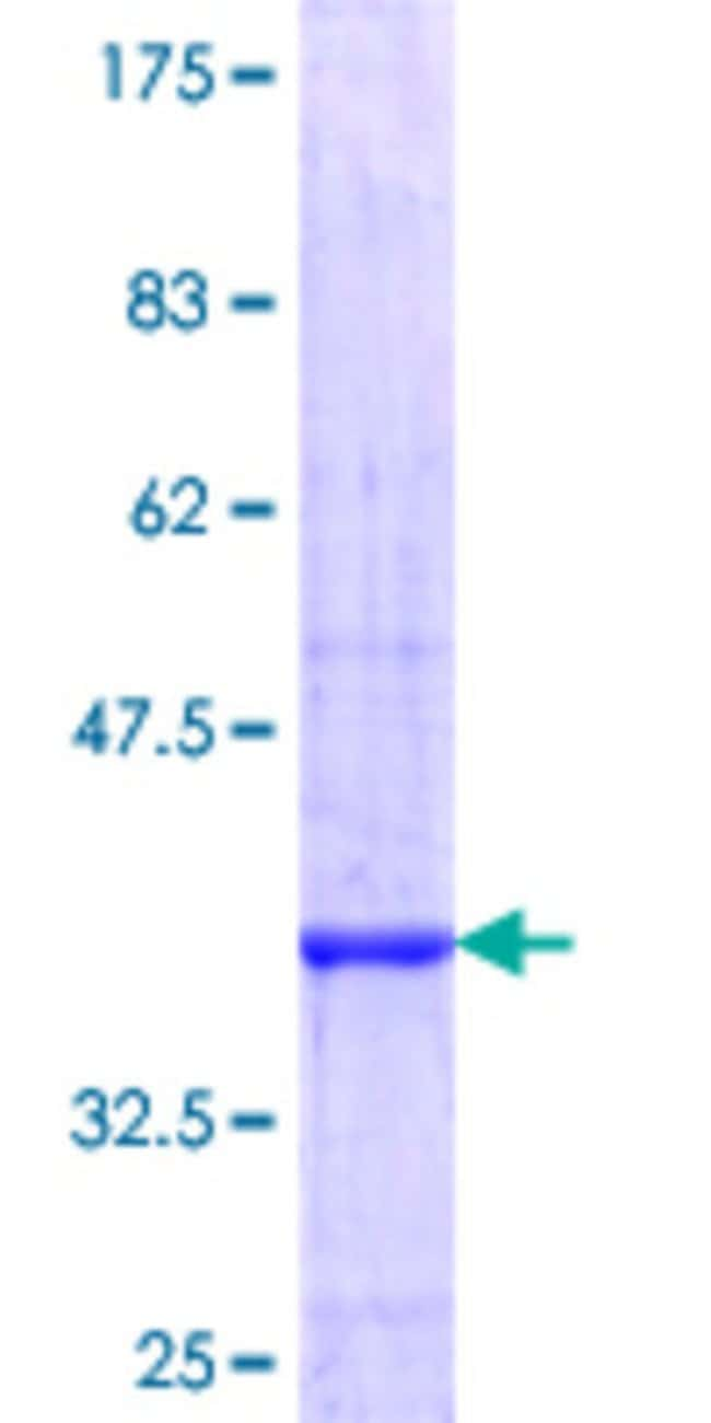 Abnova™Human PPP2R5C Partial ORF (NP_002710.2, 1 a.a. - 100 a.a.) Recombinant Protein with GST-tag at N-terminal 10μg Abnova™Human PPP2R5C Partial ORF (NP_002710.2, 1 a.a. - 100 a.a.) Recombinant Protein with GST-tag at N-terminal