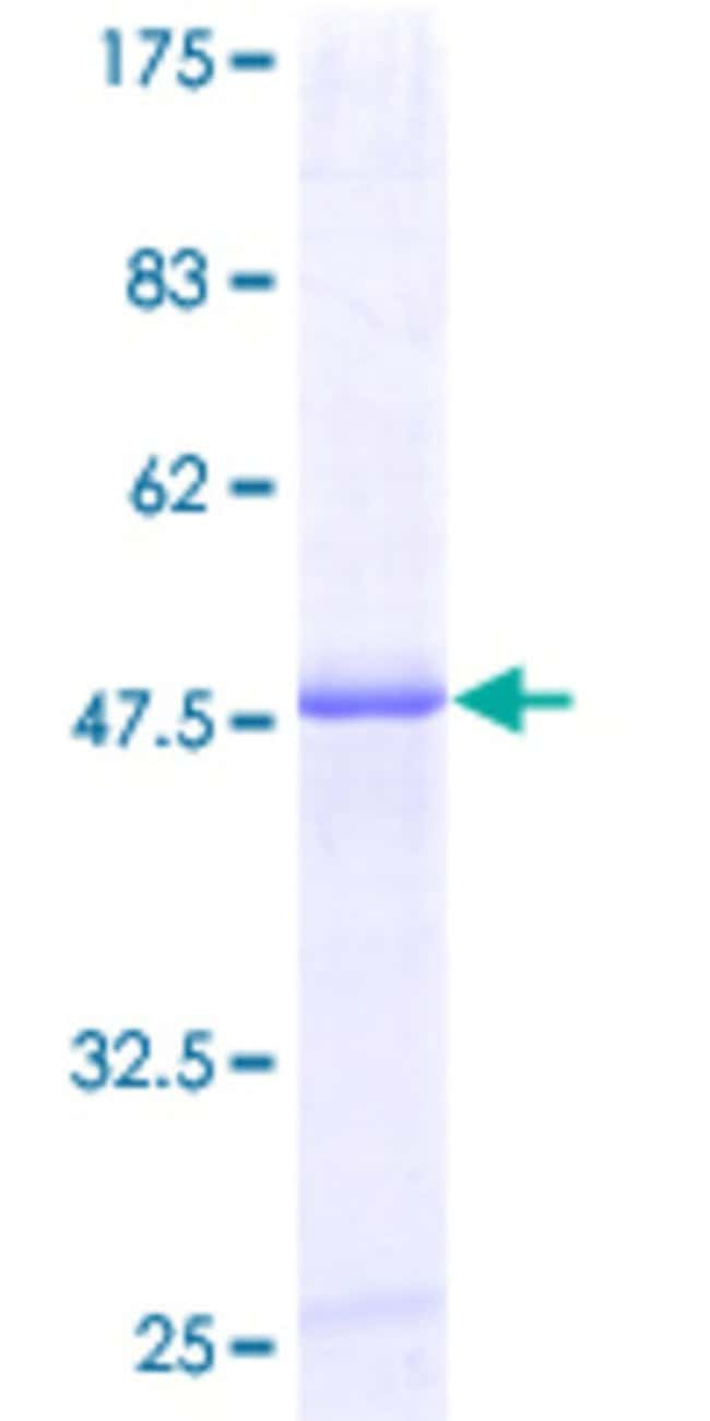 Abnova™Human PRG1 Full-length ORF (AAH15516, 1 a.a. - 158 a.a.) Recombinant Protein with GST-tag at N-terminal 25μg Abnova™Human PRG1 Full-length ORF (AAH15516, 1 a.a. - 158 a.a.) Recombinant Protein with GST-tag at N-terminal