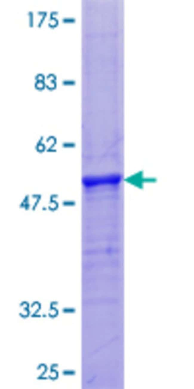 Abnova™Human PRH2 Full-length ORF (NP_005033.1, 1 a.a. - 166 a.a.) Recombinant Protein with GST-tag at N-terminal 10μg Abnova™Human PRH2 Full-length ORF (NP_005033.1, 1 a.a. - 166 a.a.) Recombinant Protein with GST-tag at N-terminal