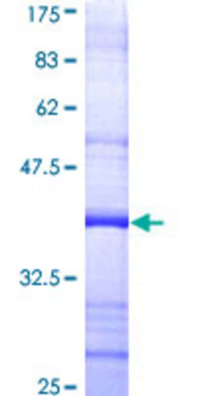 Abnova™Human PRIM1 Partial ORF (AAH05266, 1 a.a. - 100 a.a.) Recombinant Protein with GST-tag at N-terminal 10μg Abnova™Human PRIM1 Partial ORF (AAH05266, 1 a.a. - 100 a.a.) Recombinant Protein with GST-tag at N-terminal