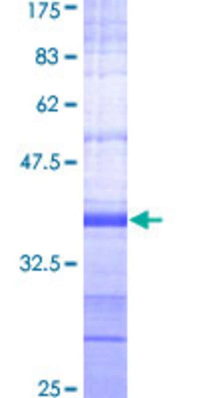 Abnova™Human PRKAA2 Partial ORF (NP_006243, 453 a.a. - 552 a.a.) Recombinant Protein with GST-tag at N-terminal 25μg Abnova™Human PRKAA2 Partial ORF (NP_006243, 453 a.a. - 552 a.a.) Recombinant Protein with GST-tag at N-terminal