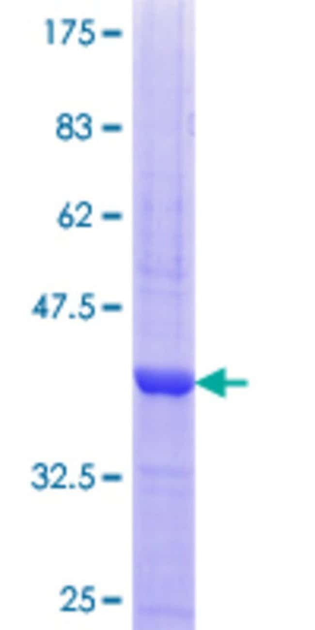 Abnova™Human PRKACG Partial ORF (AAH39888.1, 1 a.a. - 100 a.a.) Recombinant Protein with GST-tag at N-terminal 10μg Abnova™Human PRKACG Partial ORF (AAH39888.1, 1 a.a. - 100 a.a.) Recombinant Protein with GST-tag at N-terminal