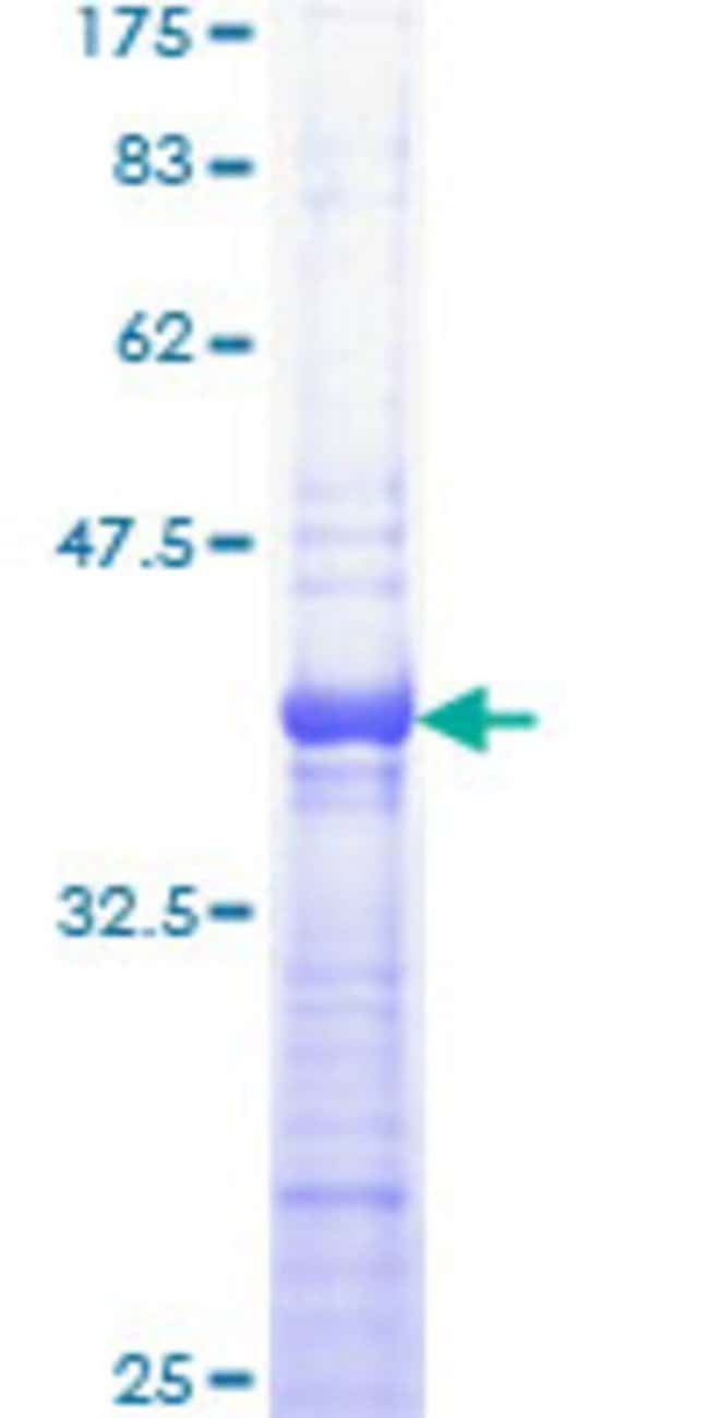 Abnova™Human PRKAR1A Partial ORF (AAH36285, 1 a.a. - 100 a.a.) Recombinant Protein with GST-tag at N-terminal 10μg Abnova™Human PRKAR1A Partial ORF (AAH36285, 1 a.a. - 100 a.a.) Recombinant Protein with GST-tag at N-terminal