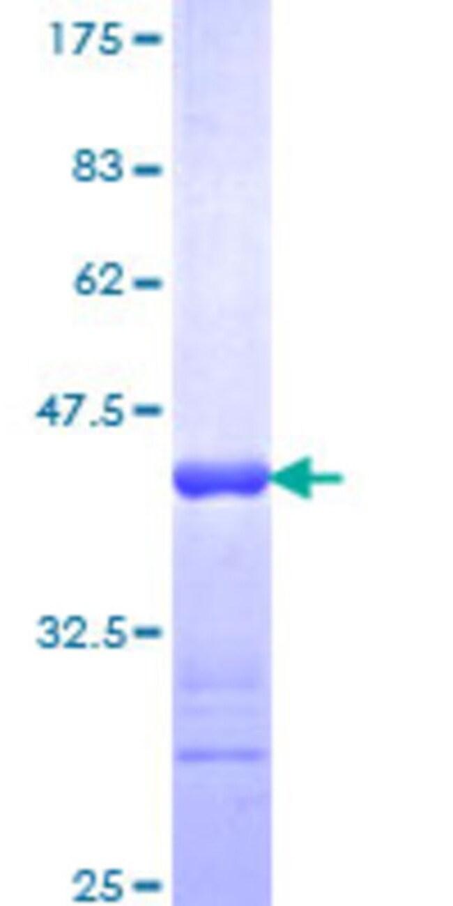 Abnova™Human PRKG2 Partial ORF (NP_006250, 1 a.a. - 100 a.a.) Recombinant Protein with GST-tag at N-terminal 10μg Abnova™Human PRKG2 Partial ORF (NP_006250, 1 a.a. - 100 a.a.) Recombinant Protein with GST-tag at N-terminal