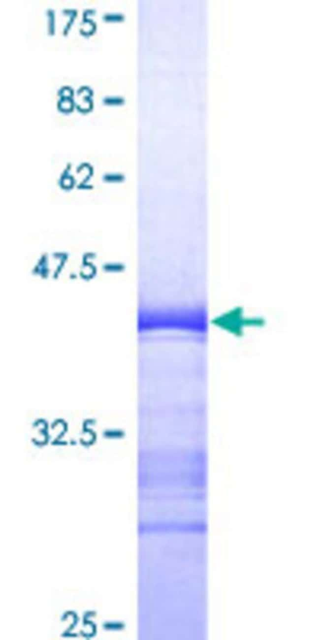Abnova Human MAPK3 Partial ORF (AAH13992, 279 a.a. - 379 a.a.) Recombinant