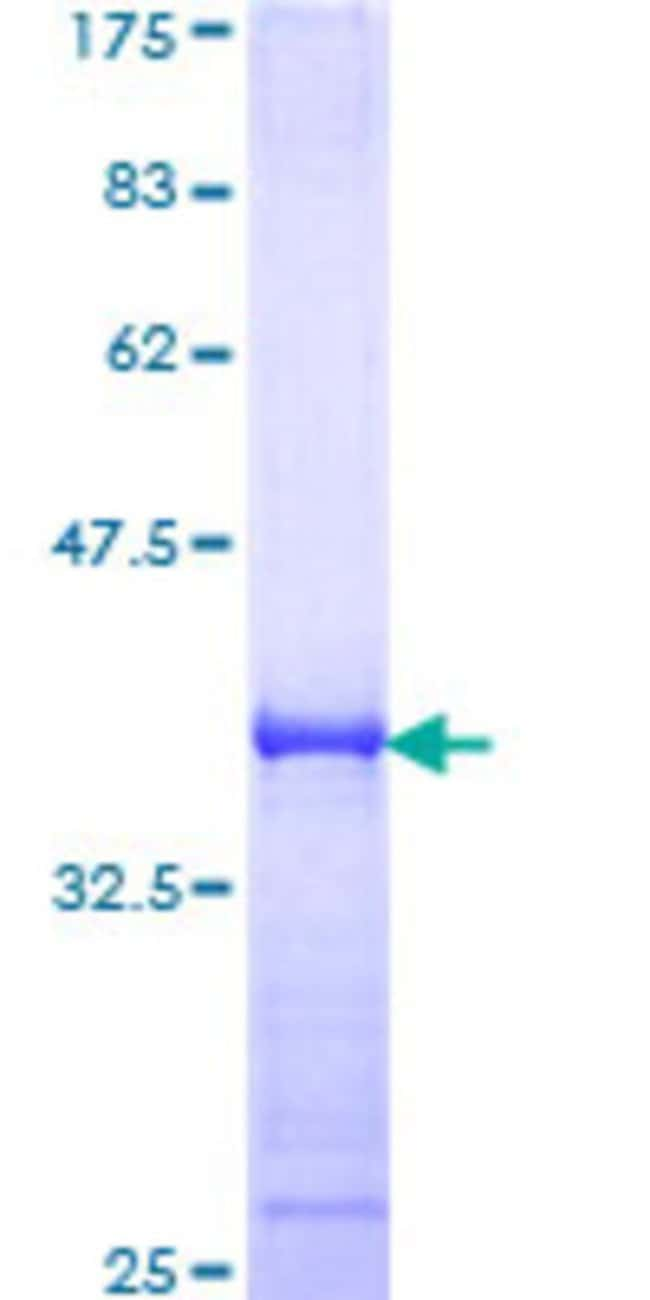 Abnova™Human MAPK11 Partial ORF (AAH27933, 255 a.a. - 364 a.a.) Recombinant Protein with GST-tag at N-terminal 25μg Abnova™Human MAPK11 Partial ORF (AAH27933, 255 a.a. - 364 a.a.) Recombinant Protein with GST-tag at N-terminal