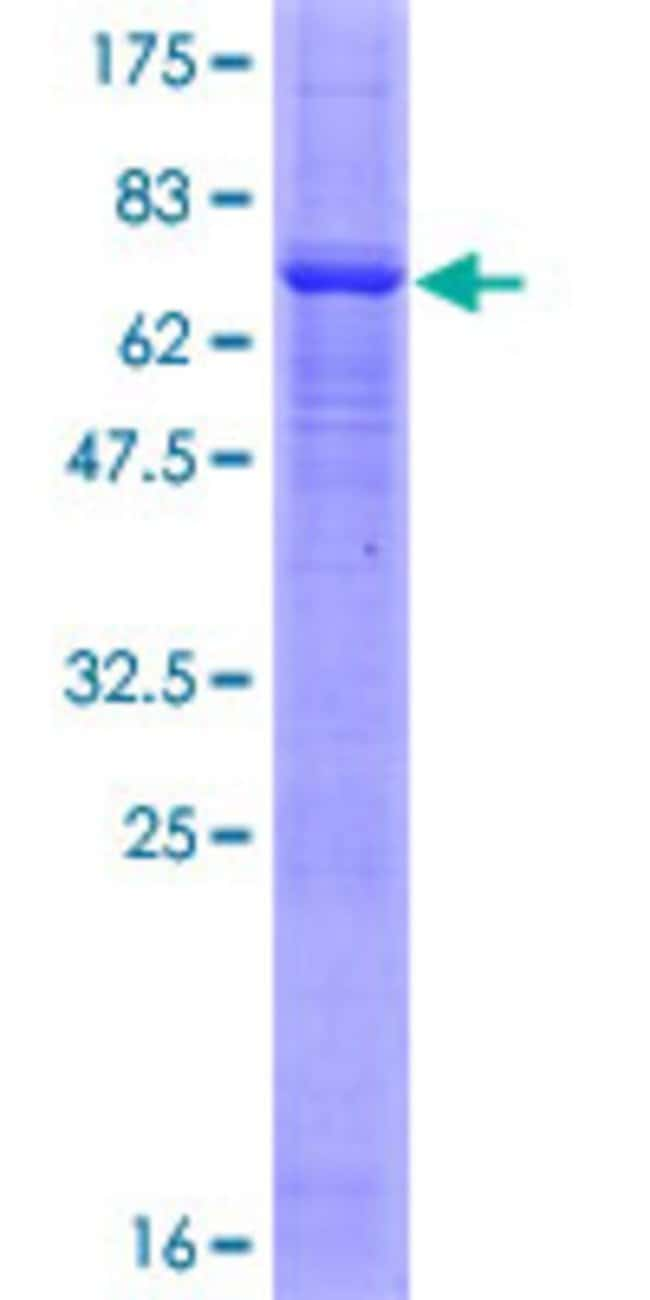 Abnova™Human PRKX Full-length ORF (NP_005035.1, 1 a.a. - 358 a.a.) Recombinant Protein with GST-tag at N-terminal 25μg Abnova™Human PRKX Full-length ORF (NP_005035.1, 1 a.a. - 358 a.a.) Recombinant Protein with GST-tag at N-terminal
